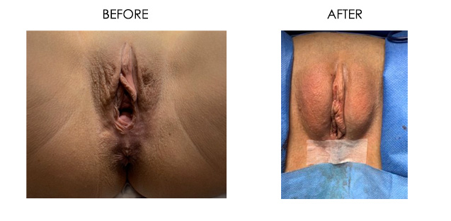 Labia Majora Enhancement with Fat Transfer Before & After