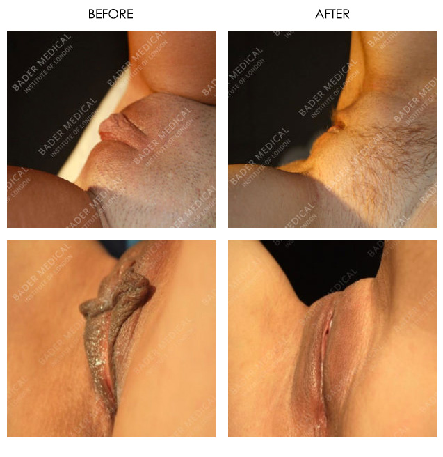 Clitoral Hoodectomy Before & After